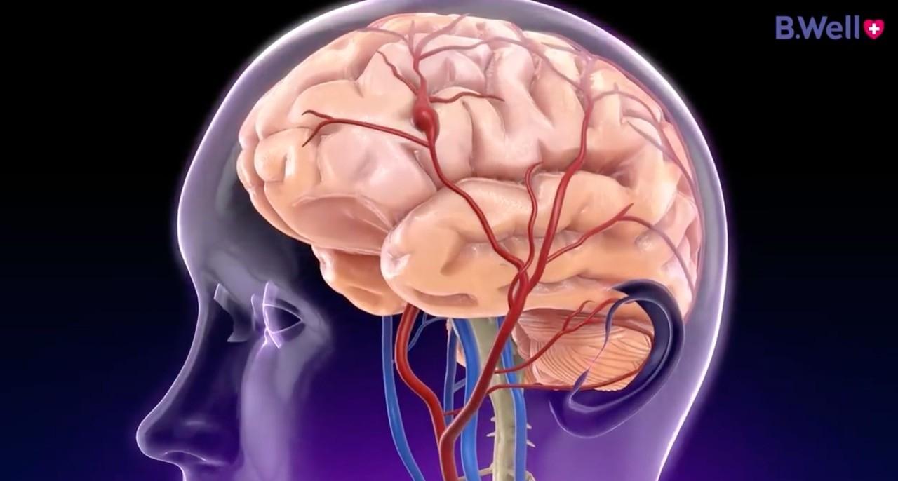 картинка с изображением головного мозга
